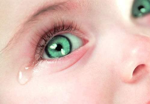 宝宝眼睛流泪不止?可能得了新生儿泪囊炎!