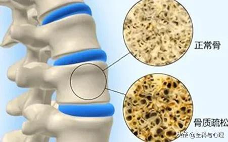 「健康零距离」警惕!这七个坏习惯导致骨质疏松!
