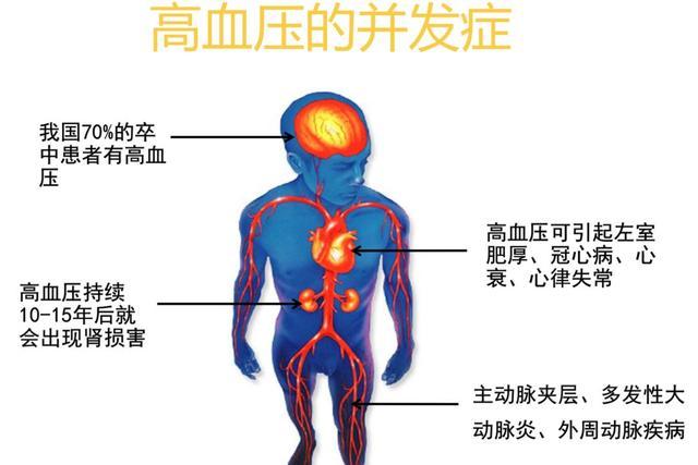 妙手养生堂■高血压生活管理指南,涉及方方面面!