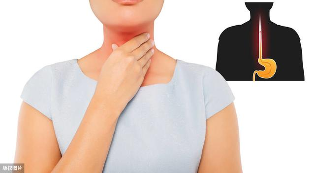 健康学堂■反流性食管炎能喝牛奶吗?听听药师怎么说