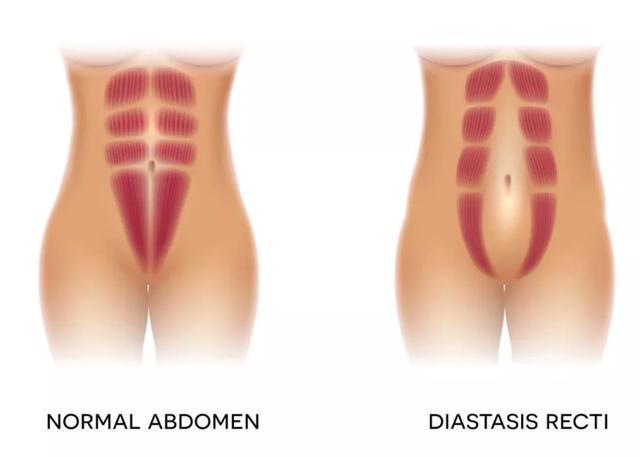 如何避免产后漏尿、脱垂和松弛?最重要的是做好这项检查