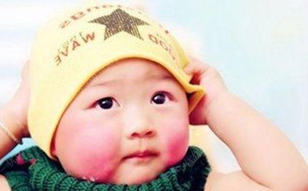 """一到冬天宝宝小脸就泛红?想要""""白里不透红"""",注意几个护理细节"""